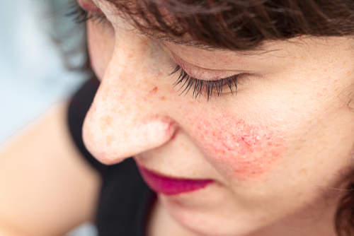 Rosacea and the Gastrointestinal Tract